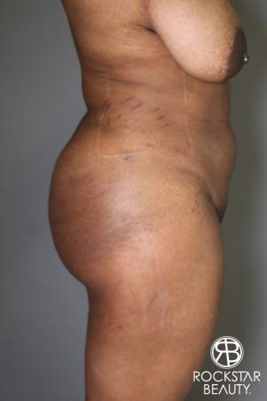 Brazilian Butt Lift: Patient 13 - After Image 2
