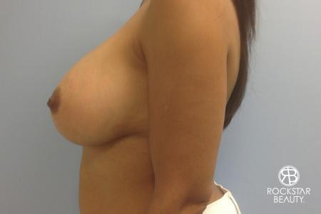 Combo Procedures - Breast: Patient 1 - After Image 5