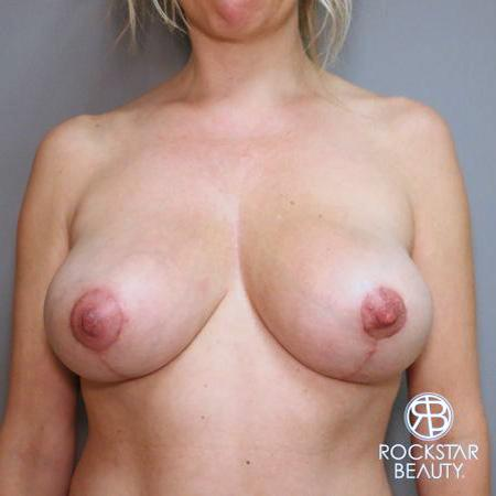 Mastopexy: Patient 1 - After Image 1