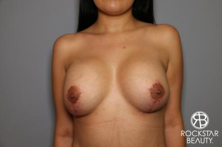 Breast Lift And Augmentation: Patient 1 - After Image 3