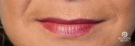 Lip Augmentation: Patient 1 - Before Image 1