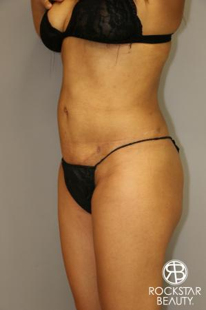 Liposuction: Patient 3 - After Image 4