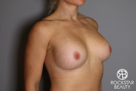 Breast Implant Exchange: Patient 9 - Before Image 2