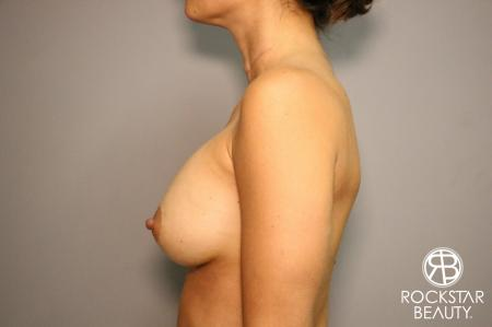 Breast Augmentation: Patient 3 - After Image 4