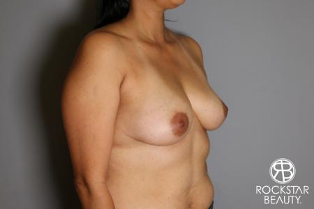 Breast Augmentation: Patient 13 - Before Image 2