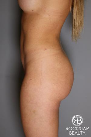 Brazilian Butt Lift: Patient 16 - After Image 2