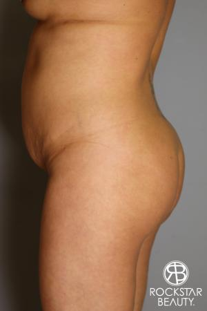 Brazilian Butt Lift: Patient 12 - Before and After Image 4