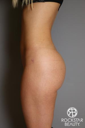 Brazilian Butt Lift: Patient 2 - After Image 2