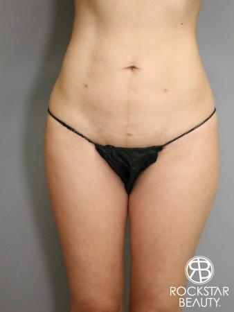 Liposuction: Patient 5 - After Image 1