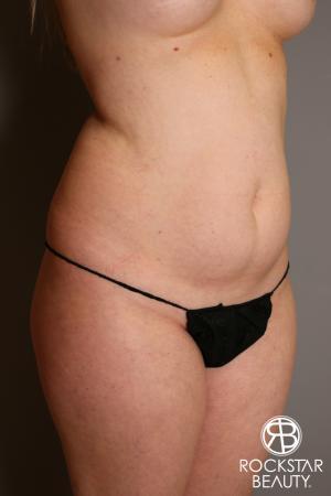 Liposuction: Patient 11 - Before Image 2