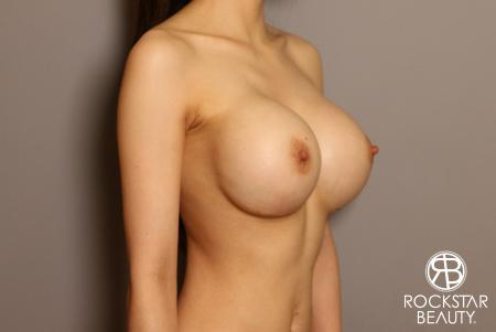 Breast Implant Exchange: Patient 8 - After Image