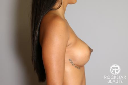 Breast Augmentation: Patient 14 - After Image 4
