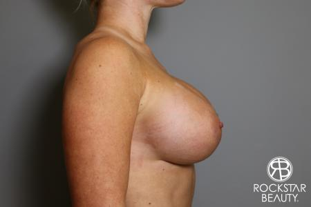 Breast Augmentation: Patient 15 - After Image 3