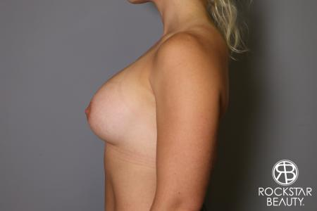 Breast Implant Exchange: Patient 9 - Before and After Image 5