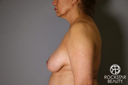 Mastopexy: Patient 3 - Before Image 3