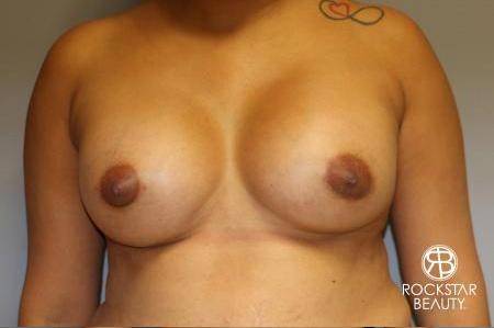 Breast Augmentation: Patient 9 - After Image