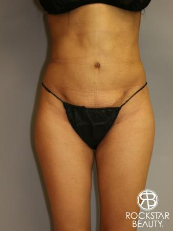 Liposuction: Patient 3 - After Image 1