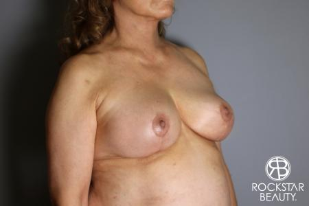 Mastopexy: Patient 3 - After Image 4