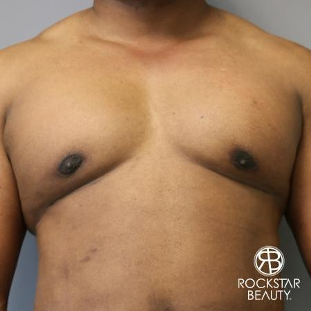 Gynecomastia: Patient 1 - After Image