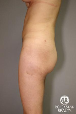 Liposuction: Patient 2 - After Image 3