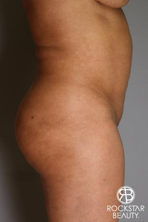 Brazilian Butt Lift: Patient 11 - Before Image 4