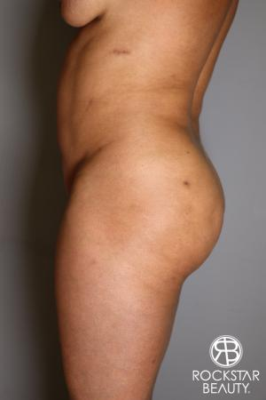 Brazilian Butt Lift: Patient 11 - Before and After Image 5