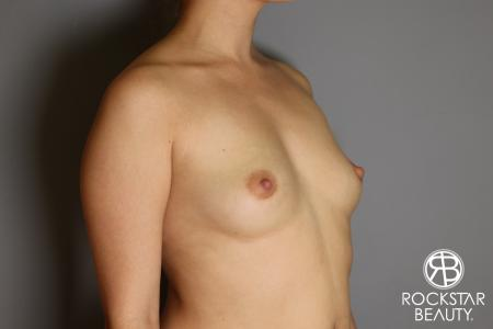 Breast Augmentation: Patient 16 - Before Image 3