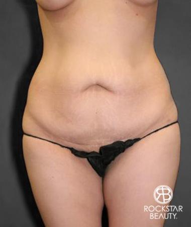 Tummy Tuck: Patient 10 - Before Image