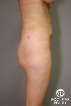 Liposuction: Patient 2 - After Image 2