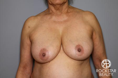 Mastopexy: Patient 3 - Before Image 1