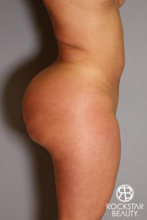 Brazilian Butt Lift: Patient 14 - Before and After Image 3