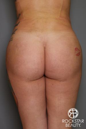 Brazilian Butt Lift: Patient 17 - After Image 1