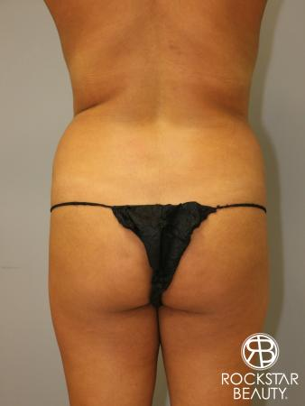 Brazilian Butt Lift: Patient 1 - Before Image