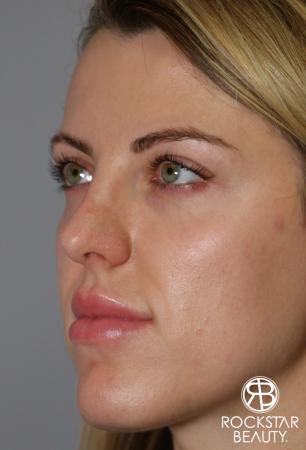 Rhinoplasty: Patient 1 - After Image 4