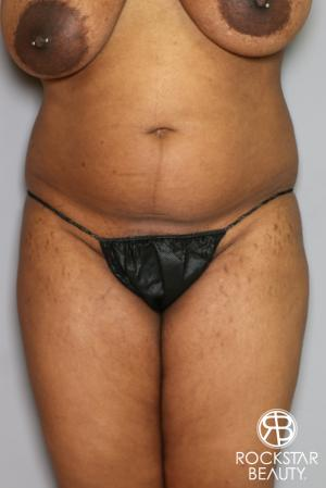 Brazilian Butt Lift: Patient 13 - Before and After Image 4