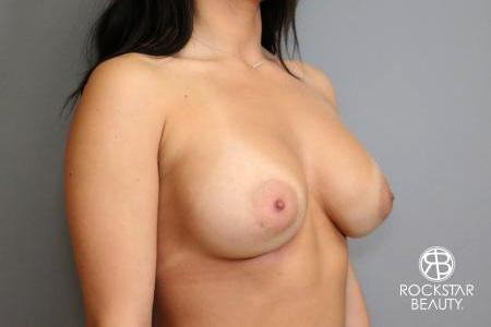 Breast Implant Exchange: Patient 4 - Before Image 2