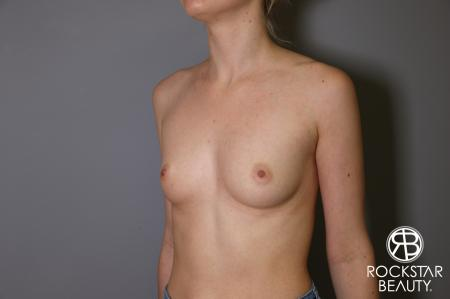 Breast Augmentation: Patient 2 - Before Image 4
