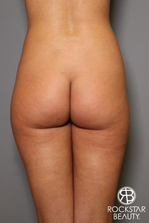 Brazilian Butt Lift: Patient 5 - Before Image