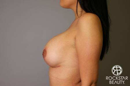 Breast Lift And Augmentation: Patient 1 - After Image