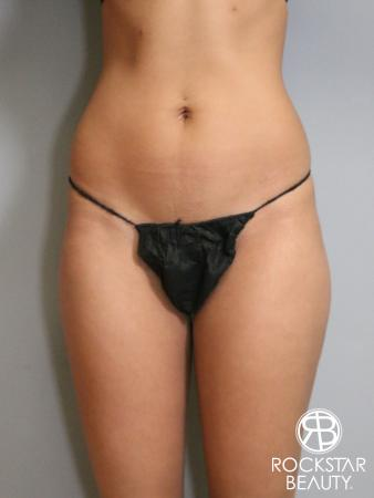 Liposuction: Patient 6 - Before and After Image 2