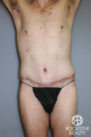Tummy Tuck: Patient 11 - After Image 1