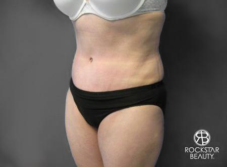 Tummy Tuck: Patient 6 - After Image 3
