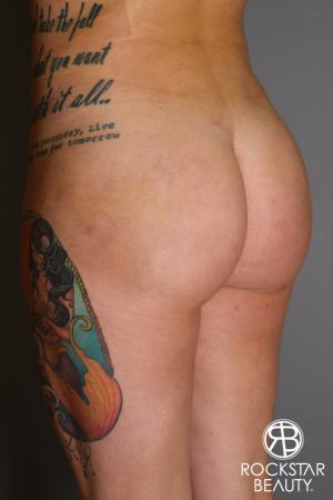 Brazilian Butt Lift: Patient 17 - After Image 3