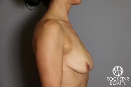 Breast Augmentation: Patient 12 - Before Image 4