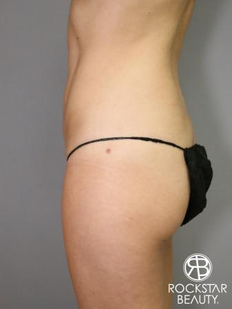 Liposuction: Patient 5 - After Image 3