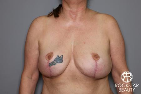 Mastopexy: Patient 2 - After Image 1