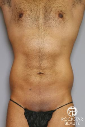 Liposuction: Patient 16 - Before and After Image 5
