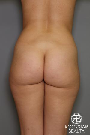 Brazilian Butt Lift: Patient 16 - Before Image 1