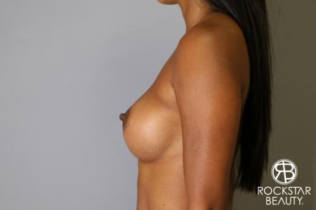 Breast Augmentation: Patient 14 - After Image 5