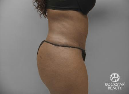 Tummy Tuck: Patient 7 - After Image 2